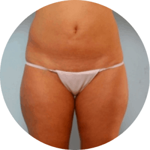 Liposuction Before After Photos - Reviews