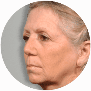 Patient Before Having Her Face Lift - Global Medical Care Face Lift