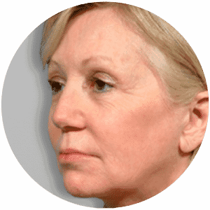 Face Lift Operations End Results - Global Medical Care Face Lift