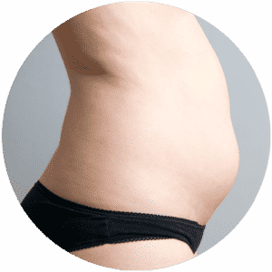 Patient Before Having Her Liposuction - Global Medical Care Liposuction