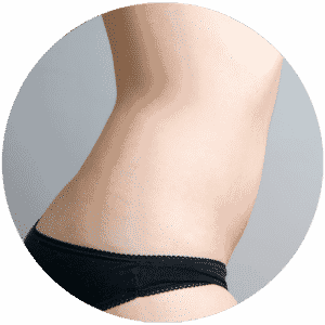 Liposuction End Results - Global Medical Care Liposuction