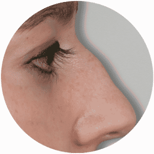 Patient Before Having Her Nose Correction - Global Medical Care Rhinoplasty