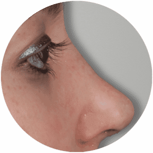 Nose Correction Operations End Results - Global Medical Care Rhinoplasty