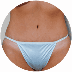 Tummy Tuck End Results - Global Medical Care Tummy Tuck