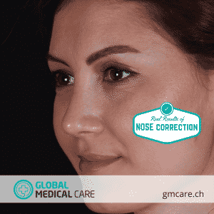 Nose Operation - Rhinoplasty Results - Global Medical Care