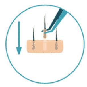 Graft Implantation - HD FUE