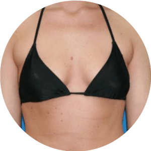 Breast Augmentation Before After Photos Best Reviews
