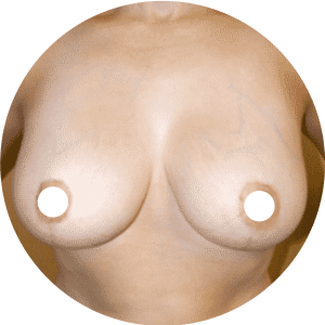 Breast Reduction - Breast Lift Before After Photos Best Reviews