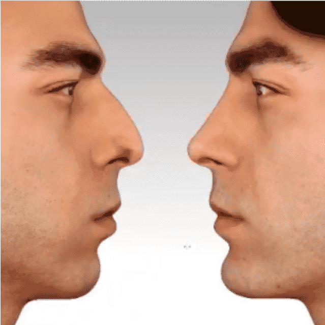 Nose Job Before After Review Cost