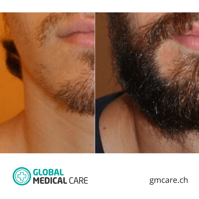 Beard Transplant Before After Photos Reviews
